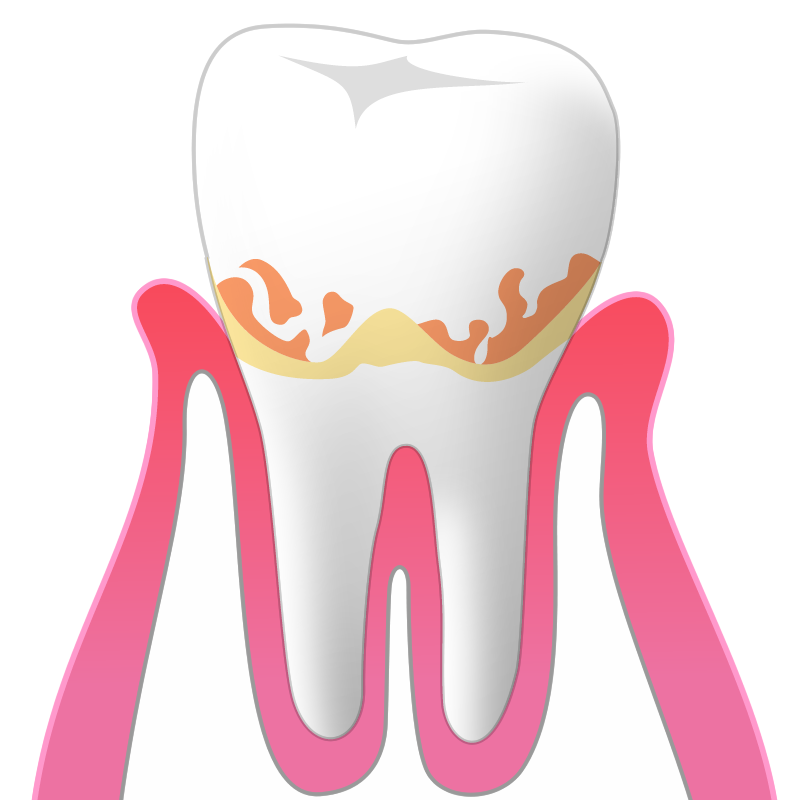 歯肉炎(G):歯周ポケットの深さ1~3mm
