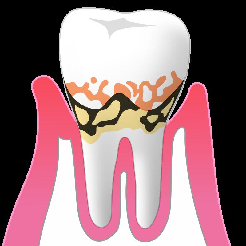 軽度歯周炎(P1):歯周ポケットの深さ3~4mm