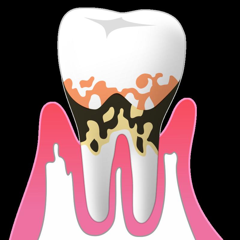 中等度歯周炎(P2):歯周ポケットの深さ5~6mm