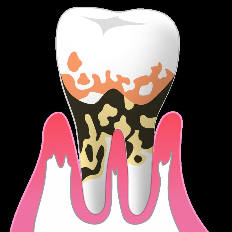 重度歯周炎(P3):歯周ポケットの深さ7mm以上